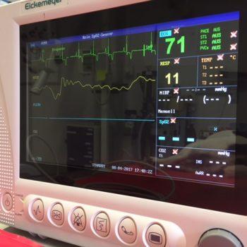 Inhalationsnarkose mit Monitorüberwachung